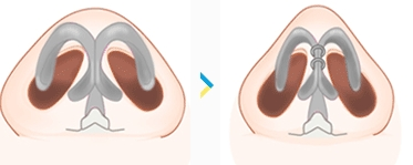 nasal tip surgery korea