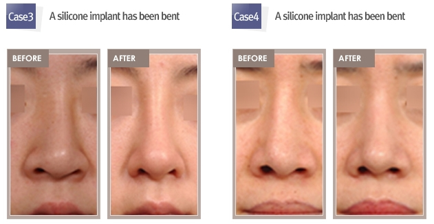 rhinoplasty revision shimmian clinic