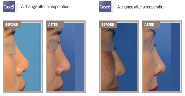 Rhinoplasty revision from Shimmian clinic