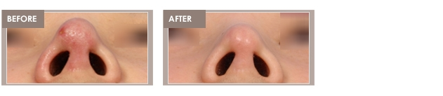 Rhinoplasty revision Shimmian clinic_00003