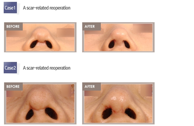 Rhinoplasty revision Shimmian clinic_00006