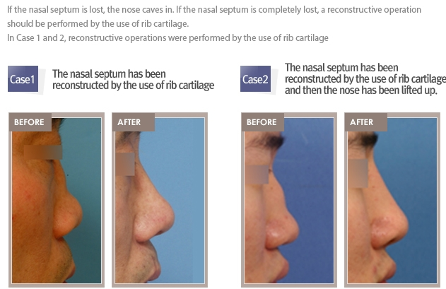 Rhinoplasty revision Shimmian clinic_00007
