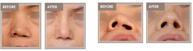 congenital nasal deformity_00002