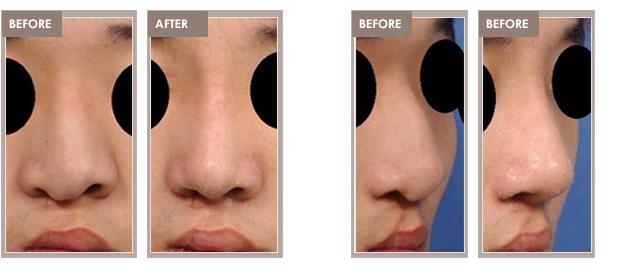 congenital nasal deformity_00003