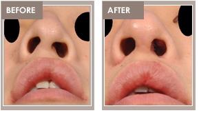 congenital nasal deformity_00004