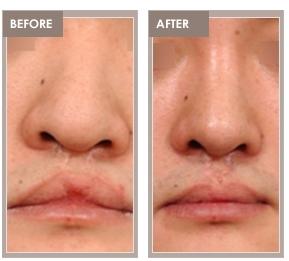 Congenital nasal deformity from Shimmian rhinoplasty clinic