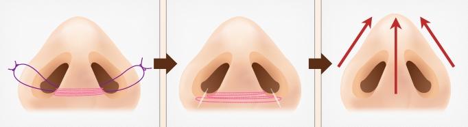 non-incision alar reduction
