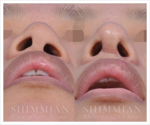 Cleft lip nasal deformity treatment