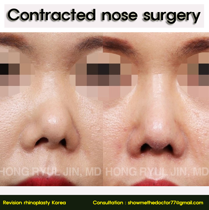 Best revision rhinoplasty surgeon in Korea