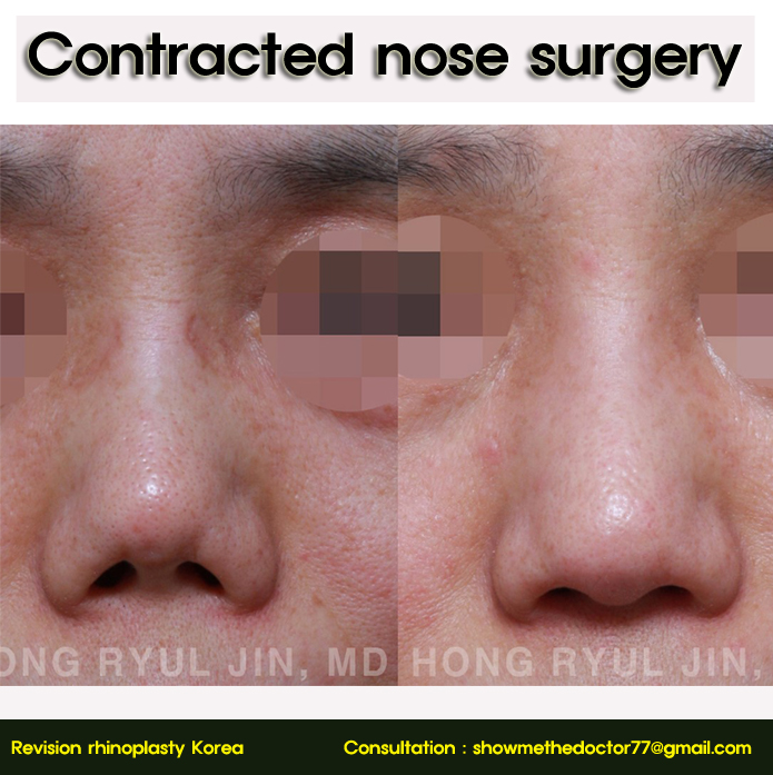 Contracted nose surgery03_rhinoplastyKorea