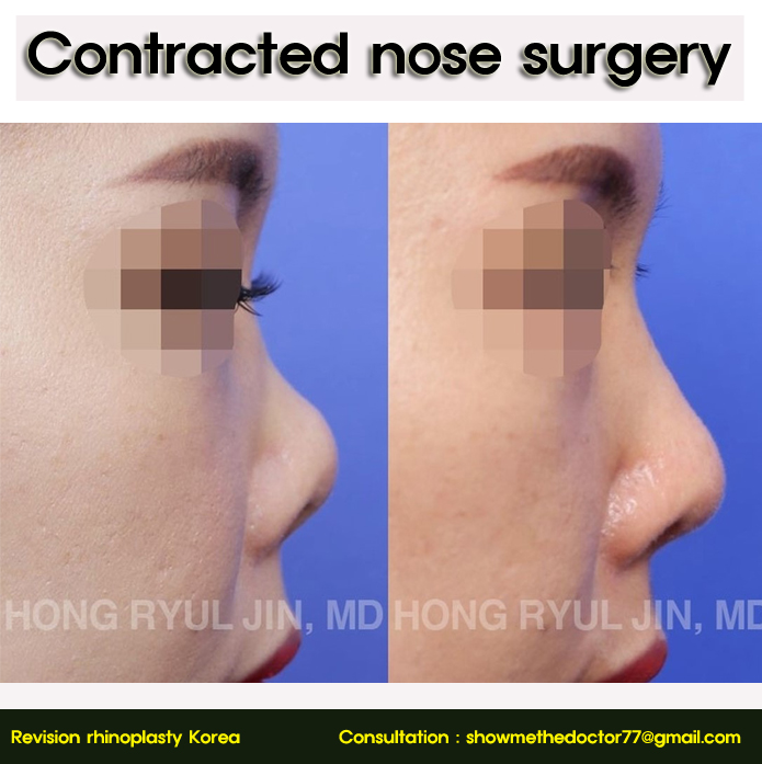 Contracted nose surgery06_rhinoplastyKorea