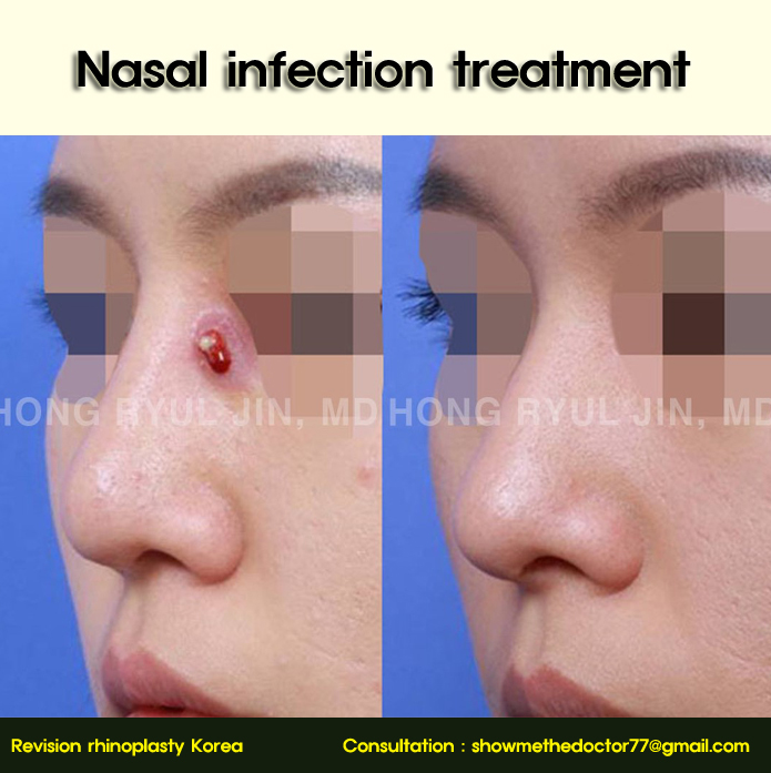 Nasal infection treatment