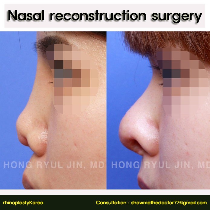 Nasal reconstruction surgery_05_rhinoplastykorea