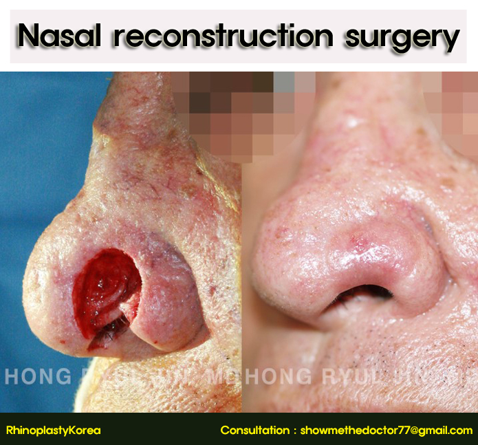 Nasal reconstruction surgery_06_rhinoplastykorea