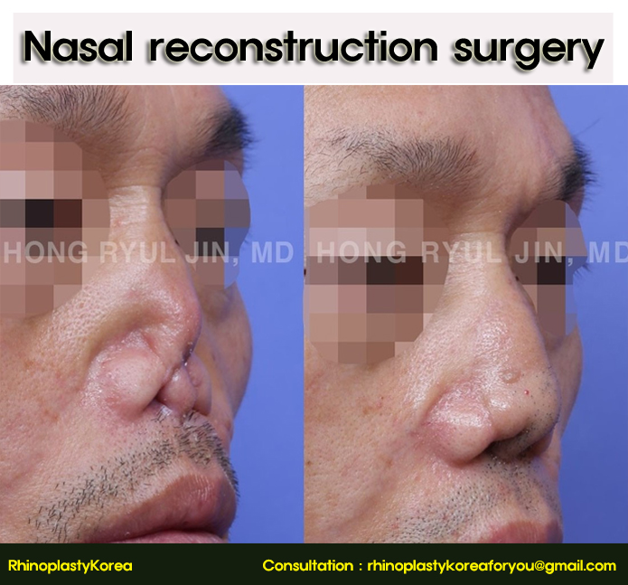 Revision rhinoplasty of the ruined nose