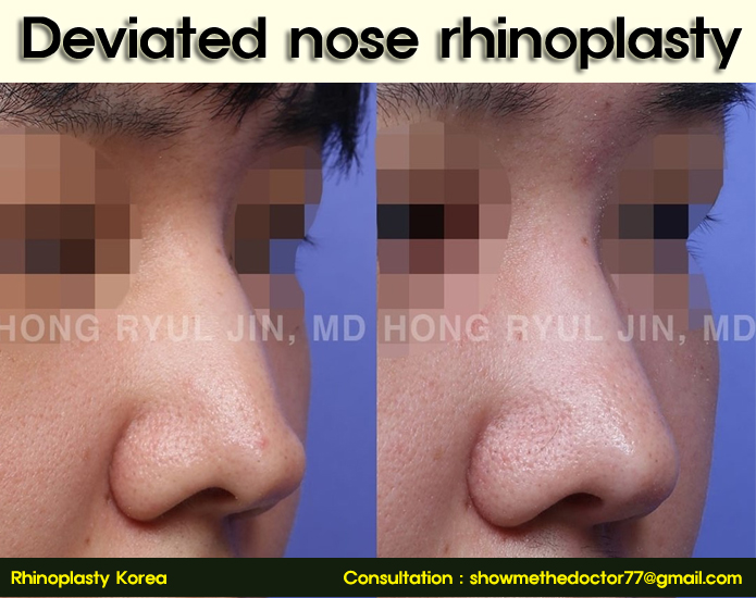 deviated nose rhinoplasty_02