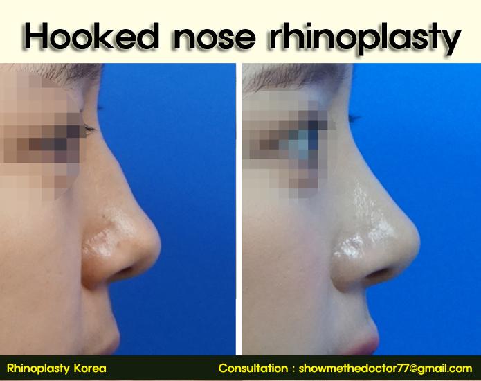 hooked nose rhinoplasty_01_rhinoplastykorea