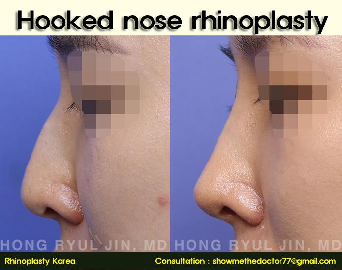 hooked nose rhinoplasty