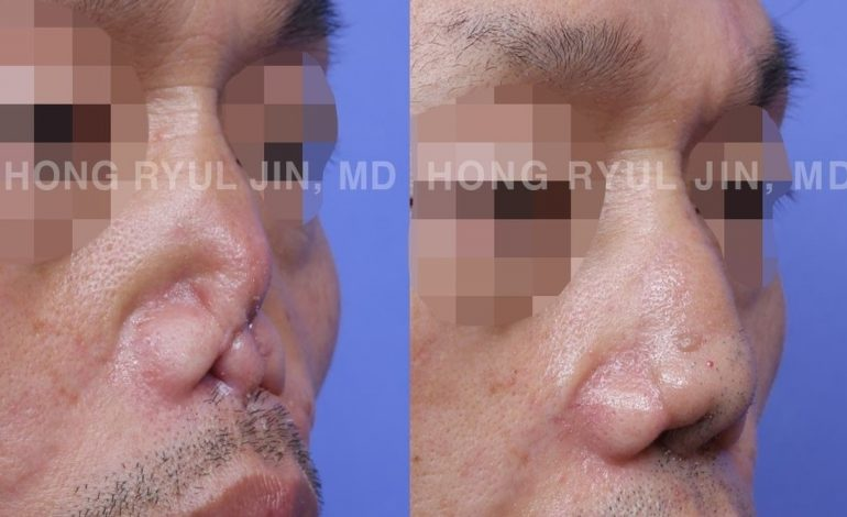 nasal reconstruction surgery Korea