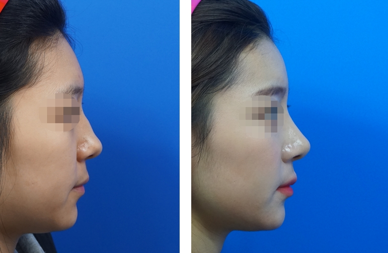 Rhinoplasty and fat grafting together