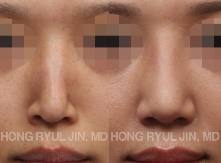 Functional Rhinoplasty by dr jin hong ryul