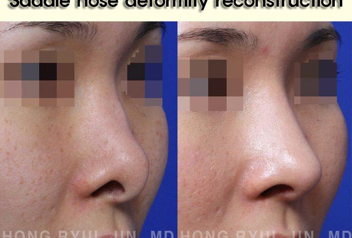 Saddle nose deformity reconstruction