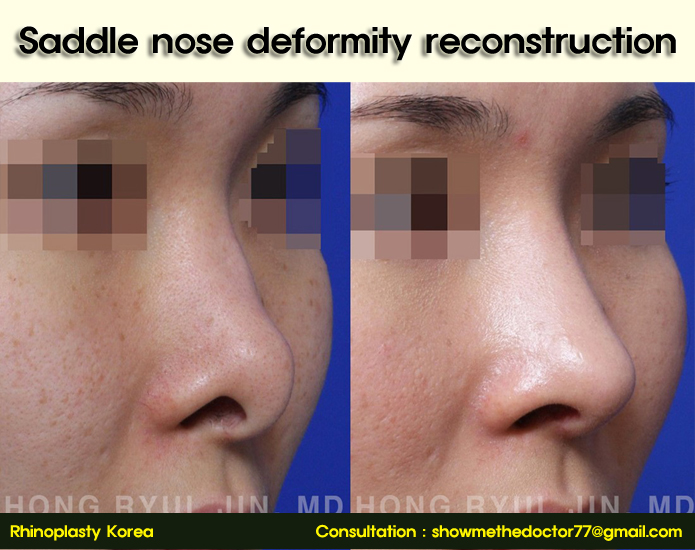 Saddle nose deformity reconstruction