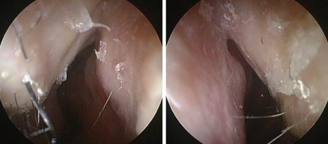 funcional rhinoplasty