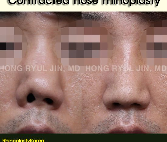 Contracted nose treatment by Dr. Jin Hong Ryul