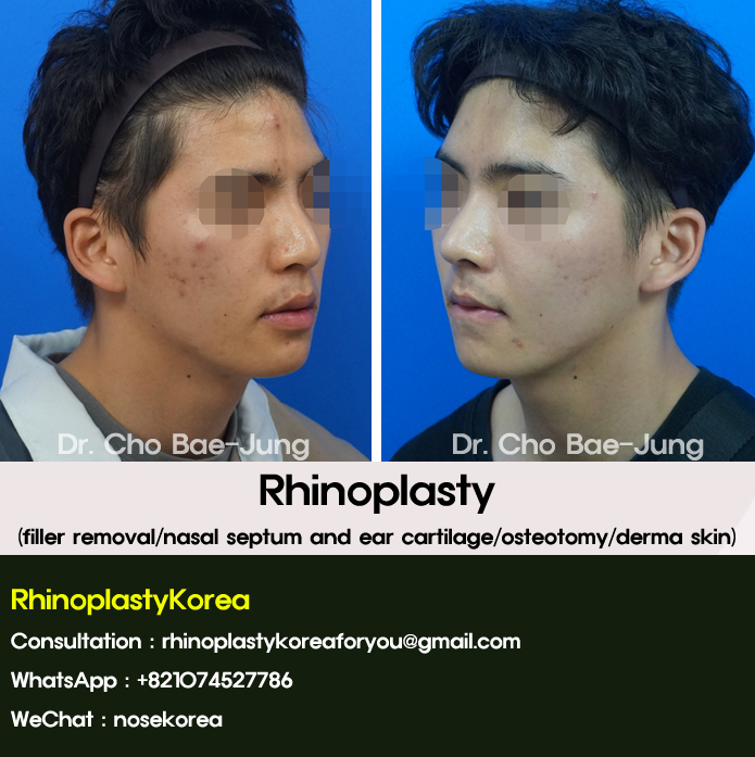 Men rhinoplasty korea by Dr. Cho Bae Jung