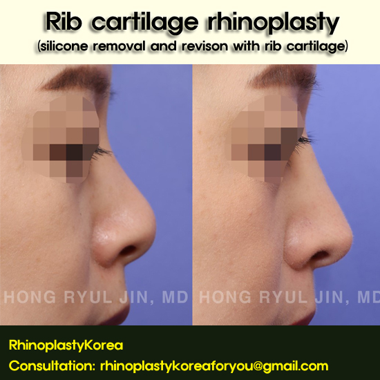 Rib cartilage rhinoplasty_dr hong ryul jin