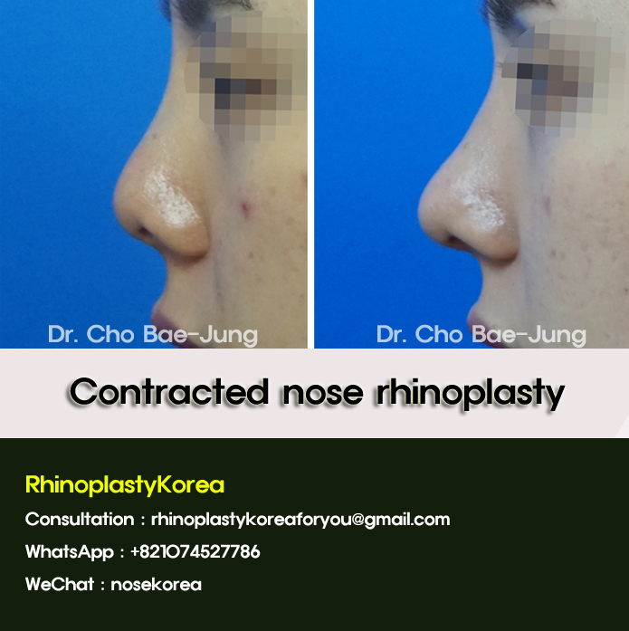 contracted nose rhinoplasty korea by Dr. Cho Bae Jung