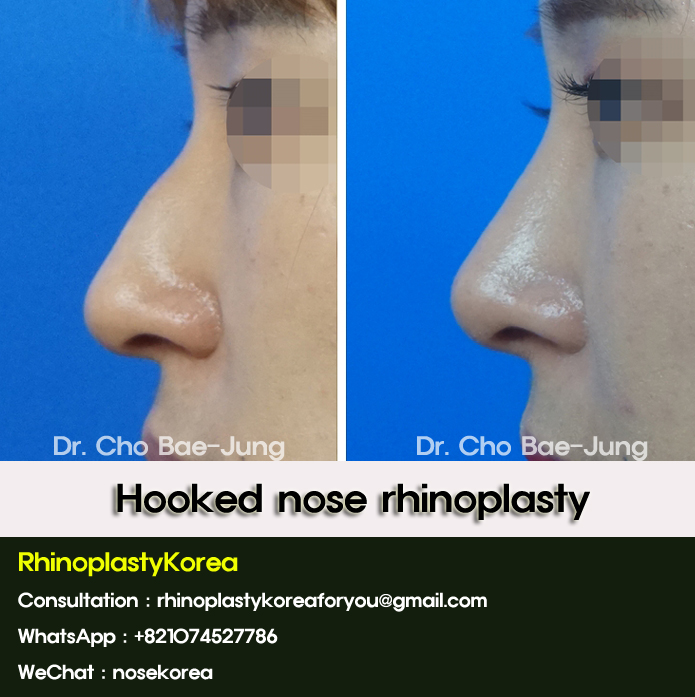 hooked nose nosejob korea by Dr. Cho Bae Jung