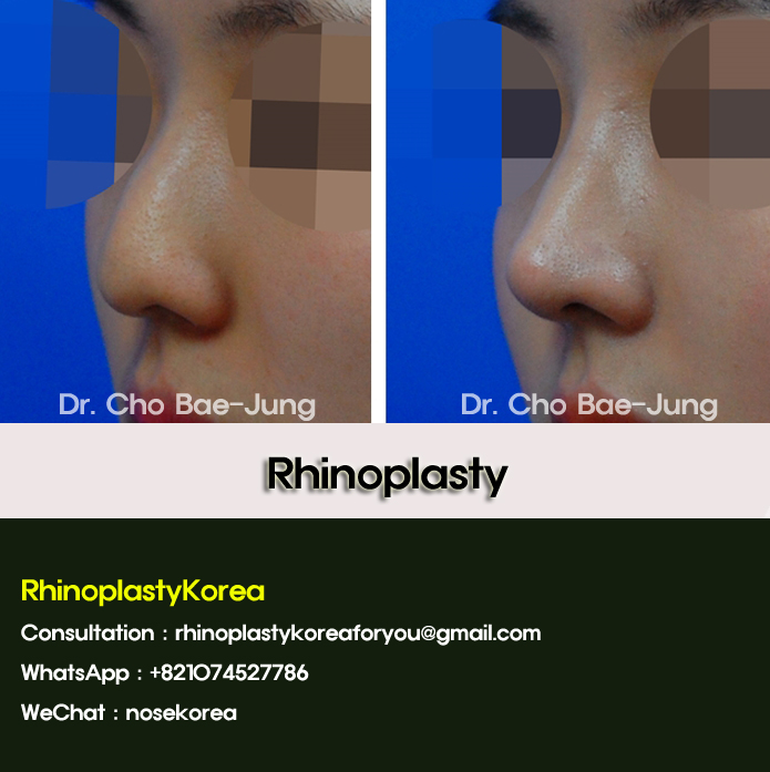 nose job korea by Dr. Cho Bae Jung