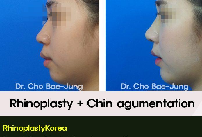 Rhinoplasty and Chin augmentation