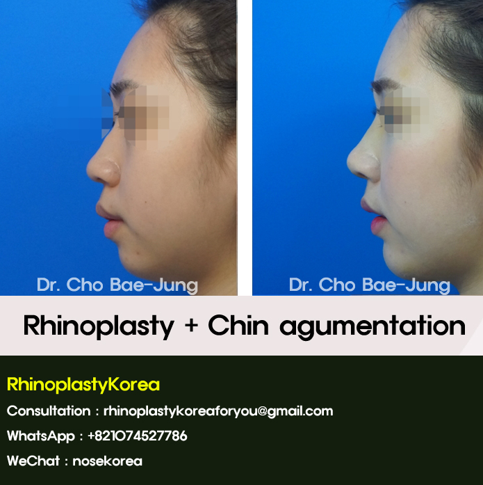 Rhinoplasty and Chin augmentation