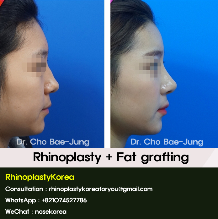 korean rhinoplasty before and after pictures