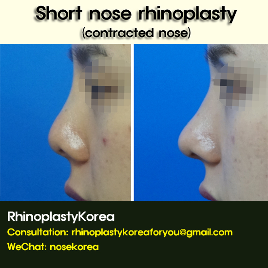 short nose rhinoplasty_dr cho bae-jung