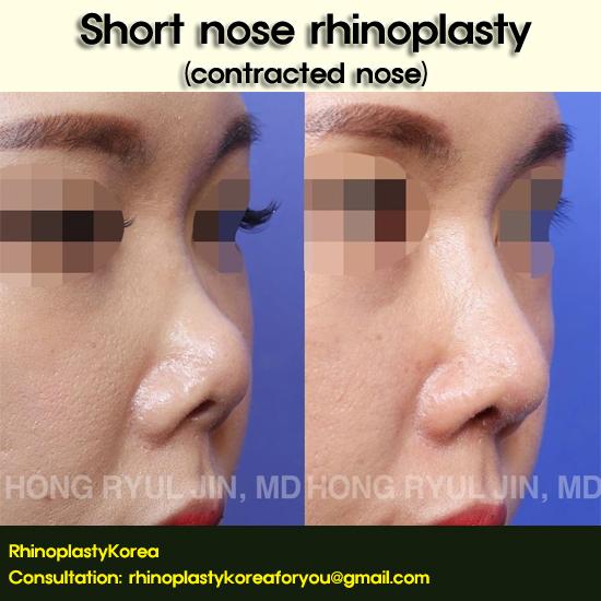 short nose rhinoplasty_dr jin hong ryul
