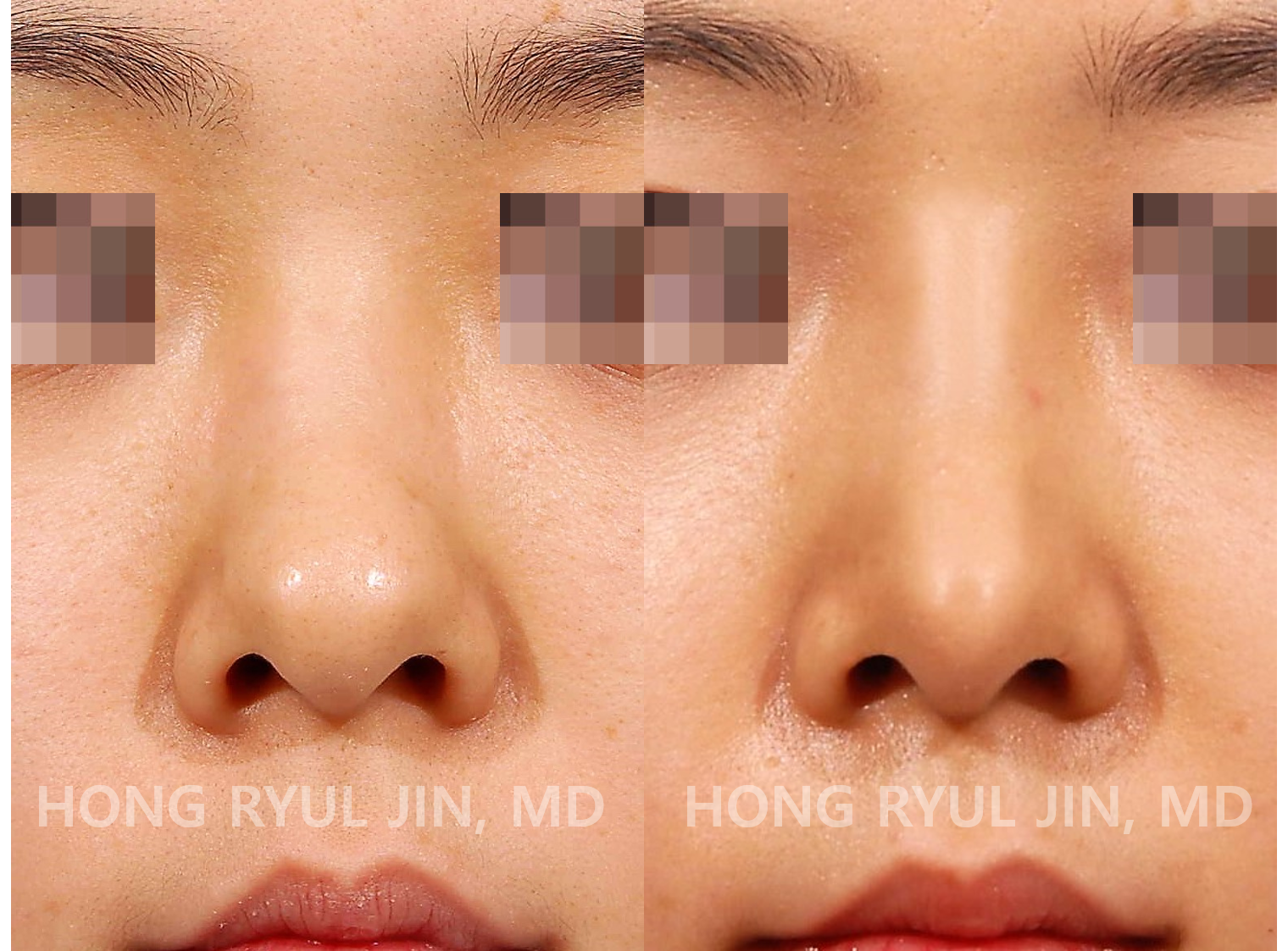 Bulbous nose rhinoplasty
