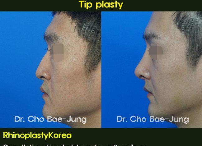 Nasal hump removal