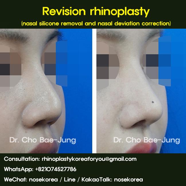 rhinoplasty korea