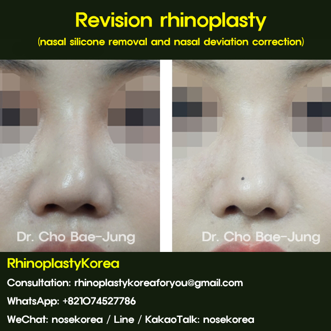 rhinoplassty korea
