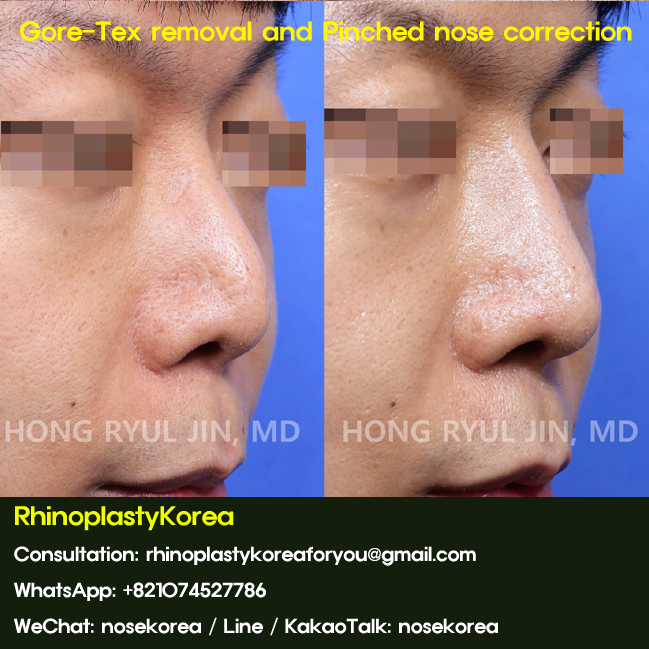 Pinched nose rhinoplasty