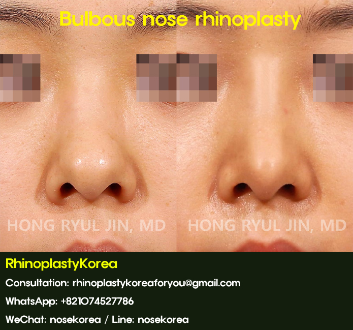 bulbous nose rhinoplasty_07