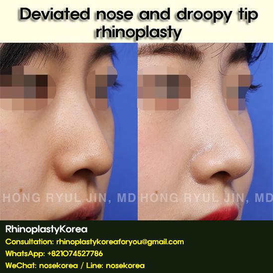 deviated nose rhinoplasty