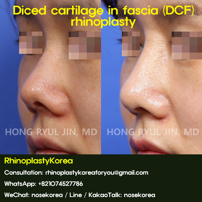 Diced cartilage in fascia by Dr. Jin Hong Ryul