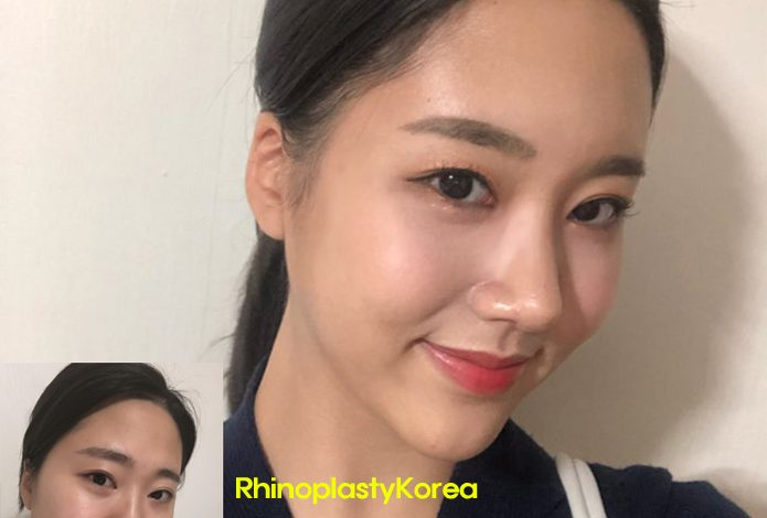 rhinoplasty korea review