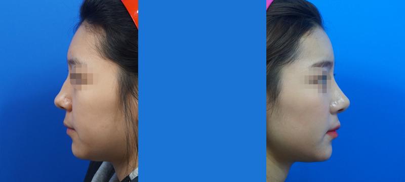 Better nose