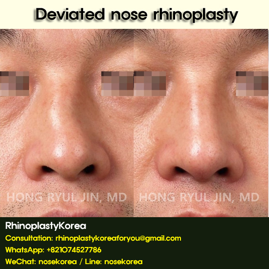 deviated nose rhinoplasty